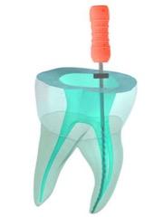 devitalizzazione denti